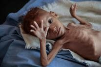 People in Yemen Eat Crumbs, Leaves to Stave off Famine
