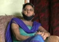 In laws held for trying to burn woman alive over dowry