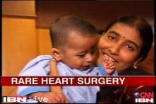 Doctors conduct one of the toughest heart surgeries to save a baby