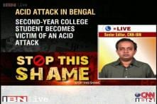 WB: 2nd year college student attacked with acid in Burdwan