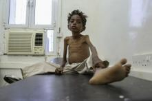 No Starvation Deaths in Last 5 Years, Says Govt, Dismissing Media Reports