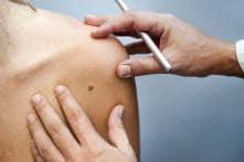Melanoma Patients Who Remove Lymph Nodes Don't Live Longer