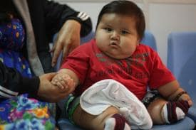 How You Can Control Obesity in Your Child?