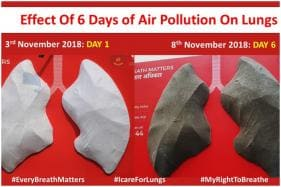 A Pair of Clean Lungs Was Installed In Delhi 6 Days Ago, This Is What It Looks Like After Diwali