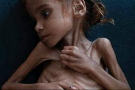 Starving 7-year-Old Girl, Whose Photograph Became Symbol of Yemen Crisis, Dies