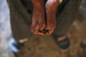 India Isn't Leprosy Free Yet: Health Campaign Data Shows Rise In 'Hidden' New Cases Of The Disease