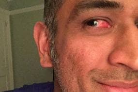 Sore Eye No Problem: Dhoni Battled Injury to Keep Wickets in Zimbabwe