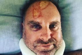 Former Australia Opener Matthew Hayden Suffers Spine Fracture After Freak Surfing Accident
