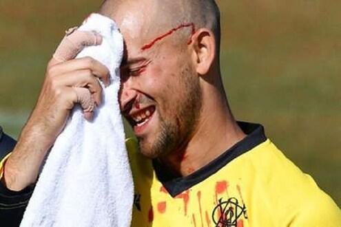 भावाला आऊट करण्याच्या प्रयत्नात क्रिकेटपटू झाला रक्तबंबाळ, पाहा VIDEO