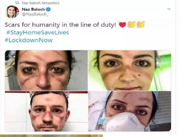 हे फोटो पाकिस्तानमधील खासदार नाज बलोच यांनी आपल्या अकाऊंटवर ट्वीट केले आहेत. त्यांनी Scars for humanity in the line of duty असं कॅप्शन देऊन फोटो शेअर केला आहे.  त्यांनी अहोरात्र रुग्णांसाठी झटणाऱ्या डॉक्टरांना सॅल्युट केला आहे.