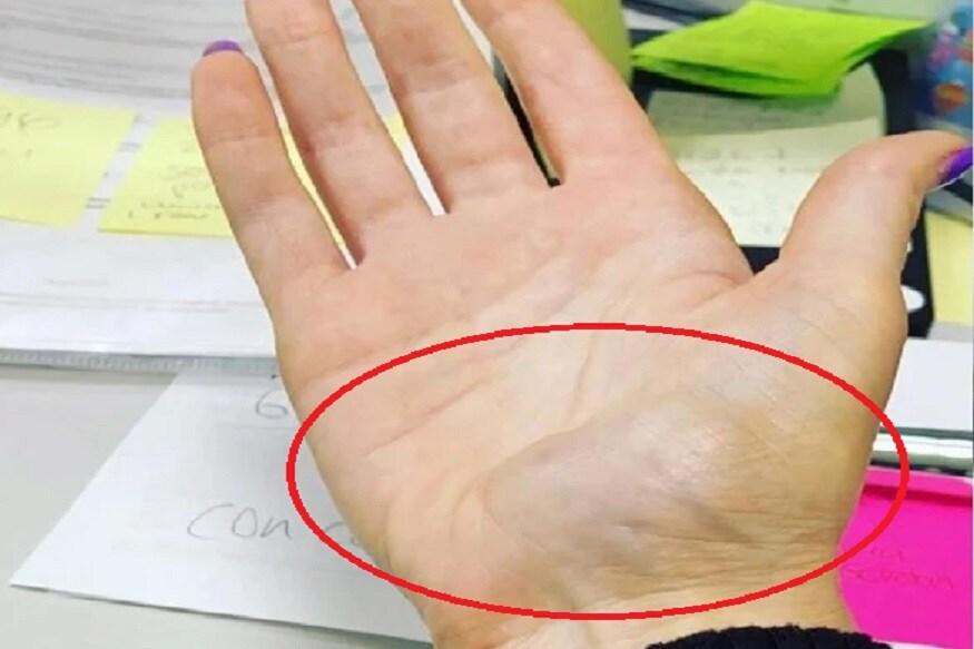 2018 मध्ये अॅमीच्या हातांवर सूज आली होती, त्यावेळी तिने त्याच्याकडे दुर्लक्ष केले होते. (फोटो सौजन्य- Mercury Press)