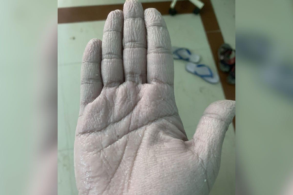 डॉक्टर सय्यद फैजान अहमद यांनी सोशल मीडियावर त्यांच्या हाताचा एक फोटो शेअर केला. यामध्ये त्यांच्या हाताची झालेली अवस्था दिसून येते आहे. त्यांनी असे म्हटले आहे 10 तास सातत्याने पीपीई किट आणि ग्लोव्ह्ज घातल्याने त्यांच्या हाताची अवस्था खराब झाली आहे. (फोटो सौजन्य- ट्विटर)