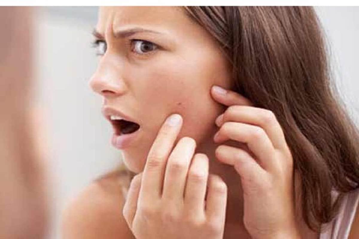 बुरशीजन्य संसर्ग कुणालाही होऊ शकतो, मधुमेह असलेल्या लोकांमध्ये याची जास्त शक्यता असते. त्वचा लाल होणं, खाज सुटणं, फोडआणि पुरळ येणं आदी समस्या दिसू लागतात. त्वचेवर लहान फोड दिसतात, ते मुरुमांसारखेच असतातमात्र दुर्लक्ष केल्यास ते पिवळसर किंवा लालसर तपकिरी रंगासह सूजलेल्या आणि कडक त्वचेचे ठिपके बनतात.