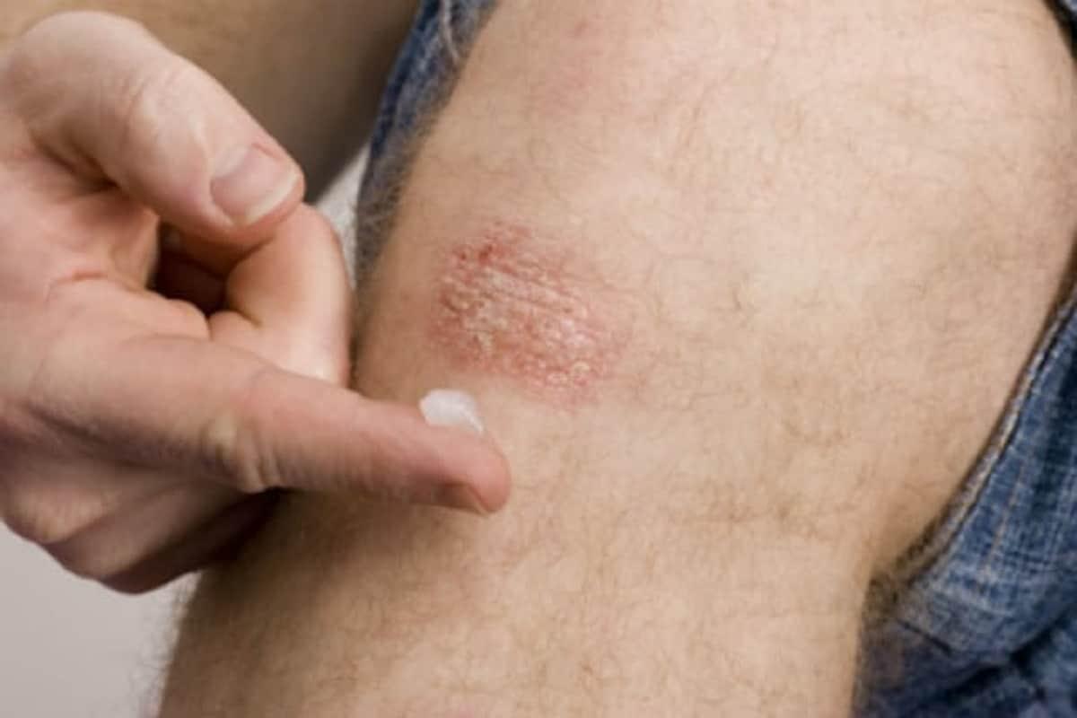 त्वचा कोरडी पडणार नाही याची काळजी घ्या. त्वचेला नियमित मॉईश्चराईज करा. जेव्हा त्वचेमध्ये कोरडेपणा जाणवेल त्यावेळी त्याचा त्वरीत वापर करणं फायदेशीर ठरेल.नारळाच्या तेलामध्ये कोरफडीचा गर मिसळून घरच्या घरी मॉईश्चरायझर बनवू शकता.मध आणि हळद या दोन्ही गोष्टींचा वापर त्वचेवर करू शकता.झोपताना त्वचेवर पेट्रोलिअम जेल तसंच ऑलिव्ह ऑईलचा वापर करू शकता.(Photo-Getty Images)