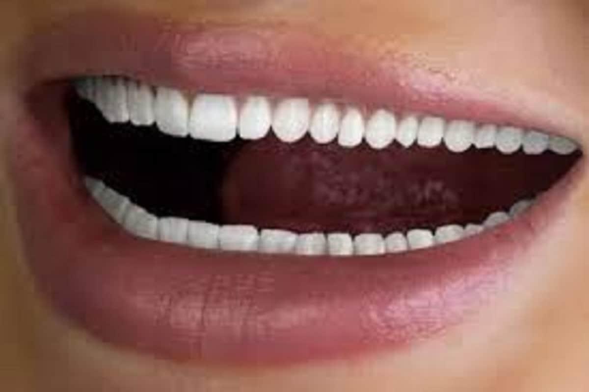 दुसरं म्हणजे वरील हिरड्यांमध्ये प्रिनम म्हणून एक टिश्यू असतो जो हायपरअॅक्टिव्ह झाल्यास दोन दातांच्या मध्ये जागा राहते.
