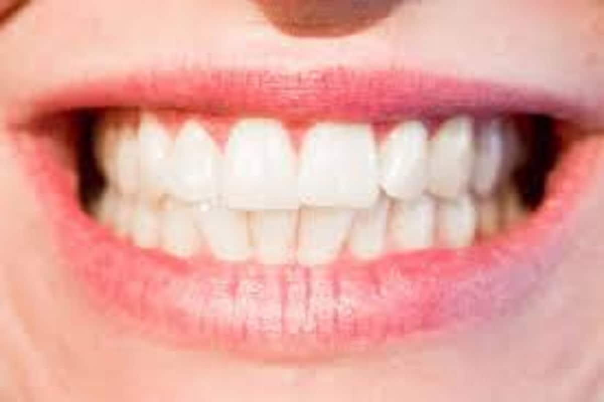 दोन दातांमध्ये पोकळी असल्यास तशी गंभीर समस्या उद्भवत नाही.मात्र त्या व्यक्तीचे शब्दोच्चार स्पष्ट नसतात कारण या पोकळीतून हवा आत जाते.