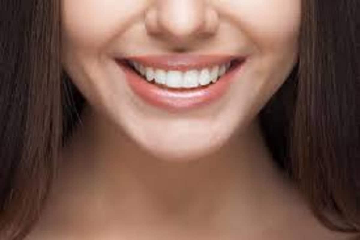 शिवाय हसताना, बोलताना ही पोकळी असेलआणि अनेकांना ती सौंदर्यात बाधा वाटते.