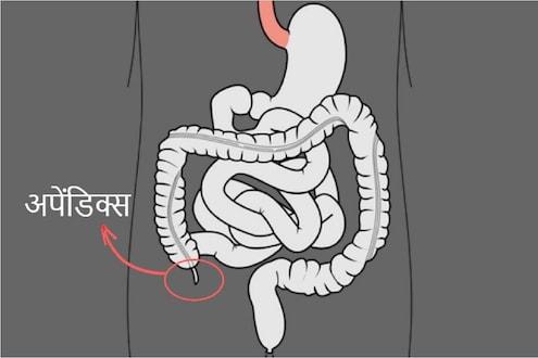 Appendix च्या ऑपरेशननंतरची काळजी; काय करावं आणि काय नाही वाचा