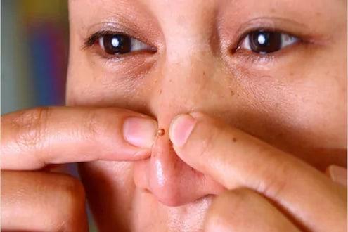 हातानेच नाकावरील पिंपल फोडणं जीवाशी; तरुणीच्या मेंदूत झालं गंभीर इन्फेक्शन