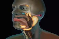 कॅन्सरवर उपचारात मदत करेल लाळ; नव्या ग्रंथींचा समूह सापडला