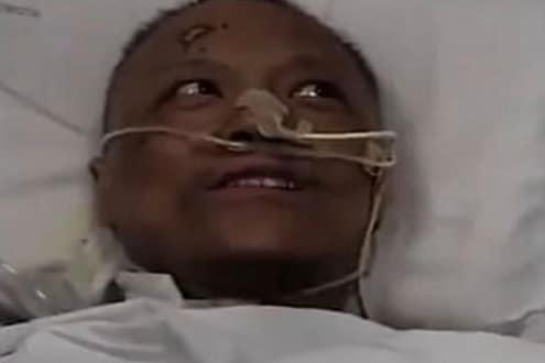 कोरोनामुळं ज्या डॉक्टरांचा चेहरा पडला होता काळा, आता ओळखताही येणार नाही अशी झाली अवस्था