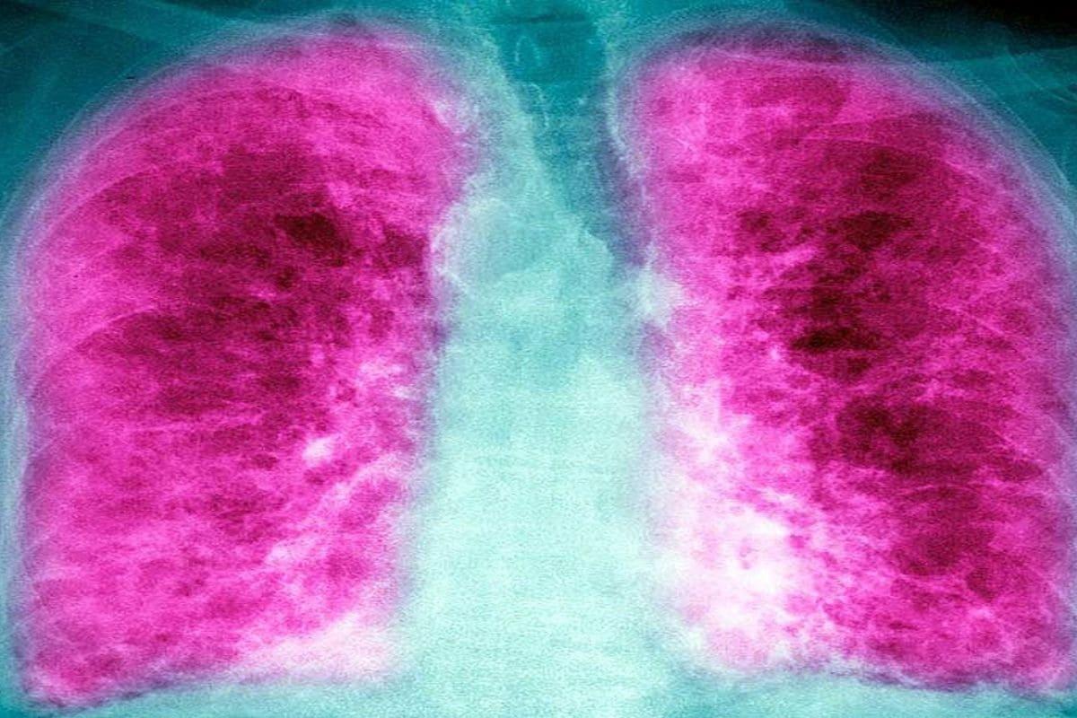 फुप्फुसांच्या पेशींना सूज येते. ऑक्सीजनची कमतरता जाणवते. अशात शरीरातील रक्त प्रवाह कमी होतो. ह्रदयाचे ठोके नीट पडत नाही. परिणामी मल्टी ऑर्गन फेल्यूअर, हार्ट अटॅक आणि गंभीर अवस्थेत मृत्यूही होऊ शकतो. डॉ. उदवादिया म्हणतात की, मला अशी अपेक्षा आहे की अधिकतर लोक लंग फायब्रोसिसमधून ठीक होऊ शकतात, मात्र काहींसाठी हा आज वाढू शकतो. (फोटोः गेटी)