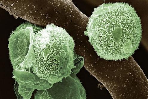 ब्लॅक, व्हाइट, येलोनंतर आता Green fungus; किती धोकादायक आहे फंगस आणि काय आहेत लक्षणं