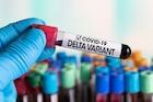 महाराष्ट्रासाठी चिंताजनक बातमी, नाशिकमध्ये Delta Variant चे 30 रुग्ण आढळले!
