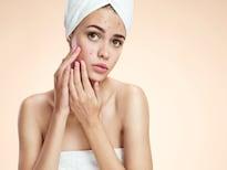 असे ओळखा 'होम रेमेडीज' करताना होणारे Side Effects; टाळा त्वचेचं नुकसान