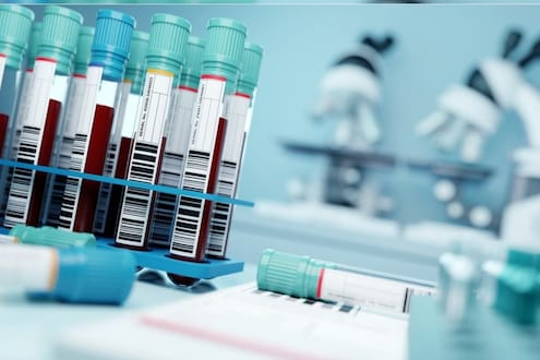 दरवर्षी लाखो लोकांचा जीव वाचवणारं 'निळं रक्त' काय आहे? जवळपास प्रत्येक लसीसाठी होतो वापर