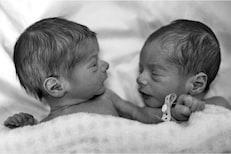 जोर का झटका! जुळ्या मुलांचे वेगवेगळे बाप; डीएनए रिपोर्ट पाहून डॉक्टरही हैराण