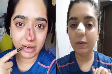Zomato Boy Assault Case: ಝೊಮೋಟೋ ಬಾಯ್ನಿಂದ ಹಲ್ಲೆ ಪ್ರಕರಣ; ಹಿಂದಿ ಮಹಿಳೆ ಹಿತೇಶ್ ಚಂದ್ರಾಣಿ ವಿರುದ್ಧ ಪ್ರತಿದೂರು