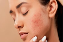 Beauty Tips: ಮೊಡವೆ ಸಮಸ್ಯೆಗೆ ಗ್ರೀನ್ ಟೀ ಪರಿಹಾರ
