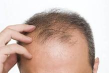 Hair Problem: ಕೂದಲು ಅತಿಯಾಗಿ ಉದುರುತ್ತಿವೆಯೇ..? ಅದಕ್ಕೆ ಕಾರಣ ಇದೇ ಇರಬಹುದಾ..!