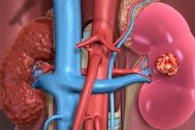 Pig Kidney Transplant in Human  ಮಾನವ ರೋಗಿಯಲ್ಲಿ ಹಂದಿ ಮೂತ್ರಪಿಂಡ ಕಸಿ ಪರೀಕ್ಷೆ ನಡೆಸಿ ಯಶಸ್ವಿಯಾದ U.S ಸರ್ಜನ್ಗಳು!