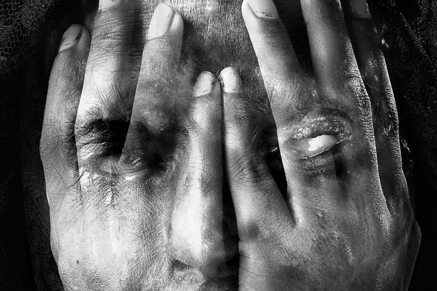 കോഴിക്കോട്: യുവതിക്കുനേരെ ആസിഡാക്രമണം. കോഴിക്കോട് കാരശ്ശേരിയിലാണ് യുവതിക്ക് നേരെആസിഡ് ഒഴിച്ച ശേഷം കത്തികൊണ്ട് കുത്തി പരുക്കേൽപ്പിച്ചത്.
