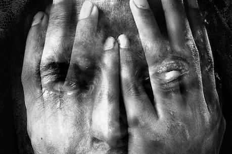 വഞ്ചിച്ച കാമുകന്റെ മുഖത്ത് ആസിഡൊഴിച്ച് യുവതി; ആക്രമണം മൂന്നര വർഷത്തെ പ്രണയം തകർന്നതോടെ