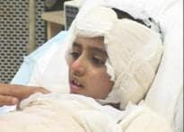Ahmedabad boy fights back blast injuries