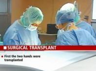 Historic surgery gives burns victim new face