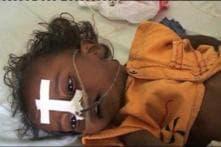 Encephalitis claims three more lives in Gorakhpur, toll reaches 576