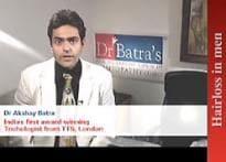 Dr Akshay Batra's tips on potent hair loss