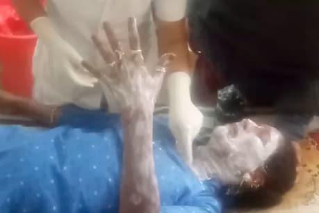 પાટણમાં ટાયરો બાળી વિરોધ દરમિયાન એક મહિલા કાર્યકર્તા દાઝ્યા
