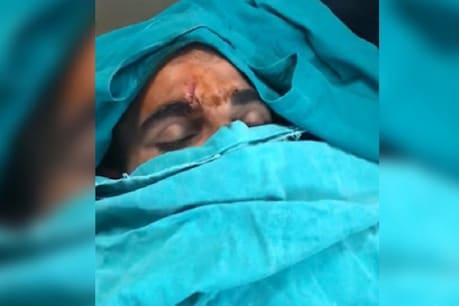 ભારતીય ક્રિકેટર મોહમ્મદ શમીનો થયો અકસ્માત, માથામાં ગંભીર ઈજા