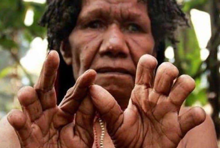 ઇન્ડોનેશિયાના પાપુઆ ગિની દ્વીપ પર રહેનારા દાની જાનજાતિના લોકો દુનિયાની સૌથી દર્દનાક અને ક્રુર પરંપરના નિભાવવા માટે મજબુર છે.