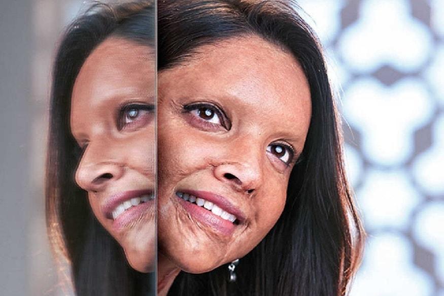 એસિડ અટેક સર્વાઇવર લક્ષ્મી અગ્રવાલનાં જીવન પરથી બની રહેલી ફિલ્મ છપાકનો ફર્સ્ટ લૂક જાહેર થઇ ગયો છે. આ લૂકમાં દીપિકા પાદુકોણ એસિડ અટેક સર્વાઇવરનાં રૂપમાં નજર આવી રહી છે. ફિલ્મનું પહેલું પોસ્ટર જોશો તો ખરેખરમાં તમને એક પળ માટે વિશ્વાસ નહીં આવે કે આ દીપિકા પાદુકોણ જ છે. આ ફિલ્મમાં દીપિકાનાં પાત્રનું નામ માલતી છે.