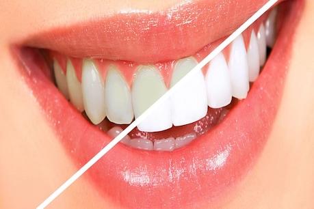 રસોડાંની આ ત્રણ વસ્તુઓ પીળા દાંતને મોતી જેવા સફેદ બનાવશે