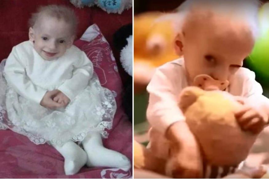 કીએફ (યૂક્રેન) : સાંભળવામાં ભલે અજબ લાગે કે યૂક્રેનમાં એક એવી દુર્લભ બીમારીનો મામલો સામે આવ્યો છે જેમાં બાળકી નાનપણમાં જ વૃદ્ધ થઈને મૃત્યુ પામે છે. આ અસાધારણ દુર્લભ આનુવંશિક બીમારી (Genetic Progeria Disease)થી પીડિત થવાના કારણે યૂક્રેન (Ukraine)માં 8 વર્ષની એક બાળકીનું વૃદ્ધ થઈ જવાથી મોત થઈ ગયું. સમગ્ર દુનિયામાં આ બીમારીથી માત્ર 160 લોકો પીડિત છે.