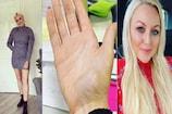 ચેતવણી! વધારે મોબાઈલ ચલાવવાથી મહિલાની હાલત ખરાબ, કપાવવો પડ્યો જમણો હાથ