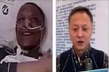કોરોનાના કારણે ચીનના જે ડૉક્ટરનો ચહેરો કાળો પડી ગયો હતો, હવે તે છે આવી સ્થિતિમાં