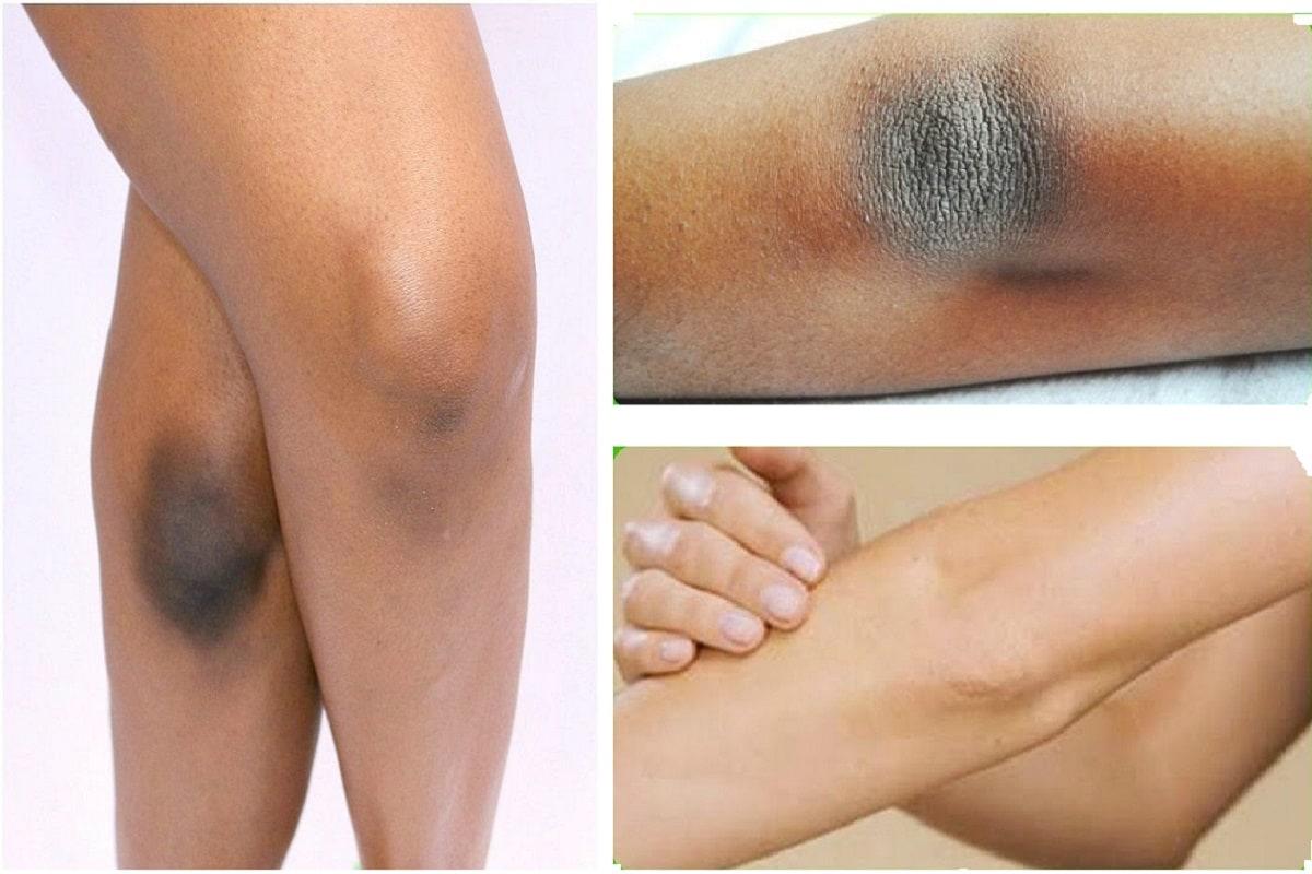 લાઇફ સ્ટાઇલ ડેસ્ક: ઘણી વખત યુવતીઓ તેમનાં ચહેરાની સુંદરતા પર વધુ ધ્યાન આપે છે જ્યારે તેમનાં હાથ અને પગની સુંદરતાને ભૂલી જાય છે. એવામાં કોણી (Elbow) અને ઘૂંટણ (Knee), પગની આંગળીઓ અને ઘુંટી વધુ પડતી કાળી પડી જાય છે આવા સમયે જો ક્યારેક શોર્ટ્સ કે સ્લિવલેસ પહેરવાનું આવે ત્યારે તેઓ શરમ અનુભવે છે. તેથી જ જો કેટલીક બાબતોની કેર કરવામાં આવે તો આ કાળી પડેલી ત્વચાને ફરી સુંદર બનાવી શકાય છે.